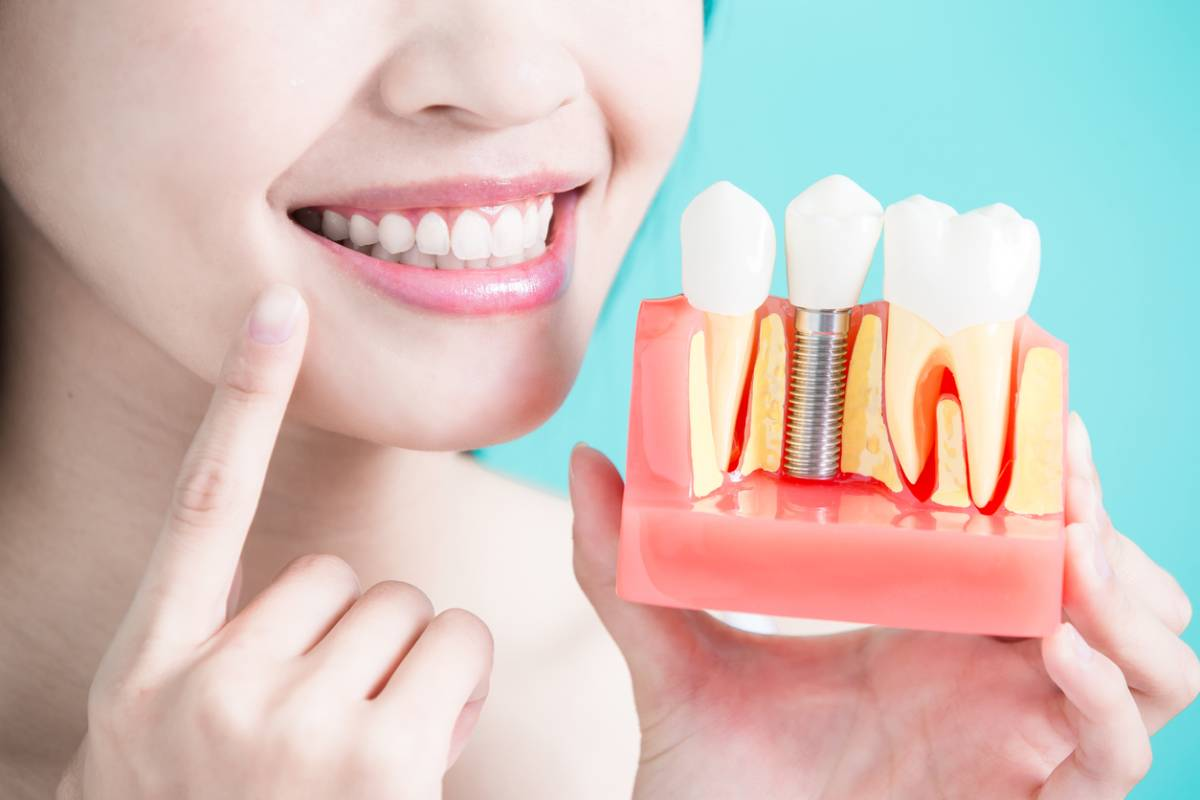 Young woman smiling holding a model of dental implants.