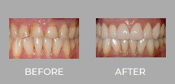 Dental Crown Patient Before & After picture