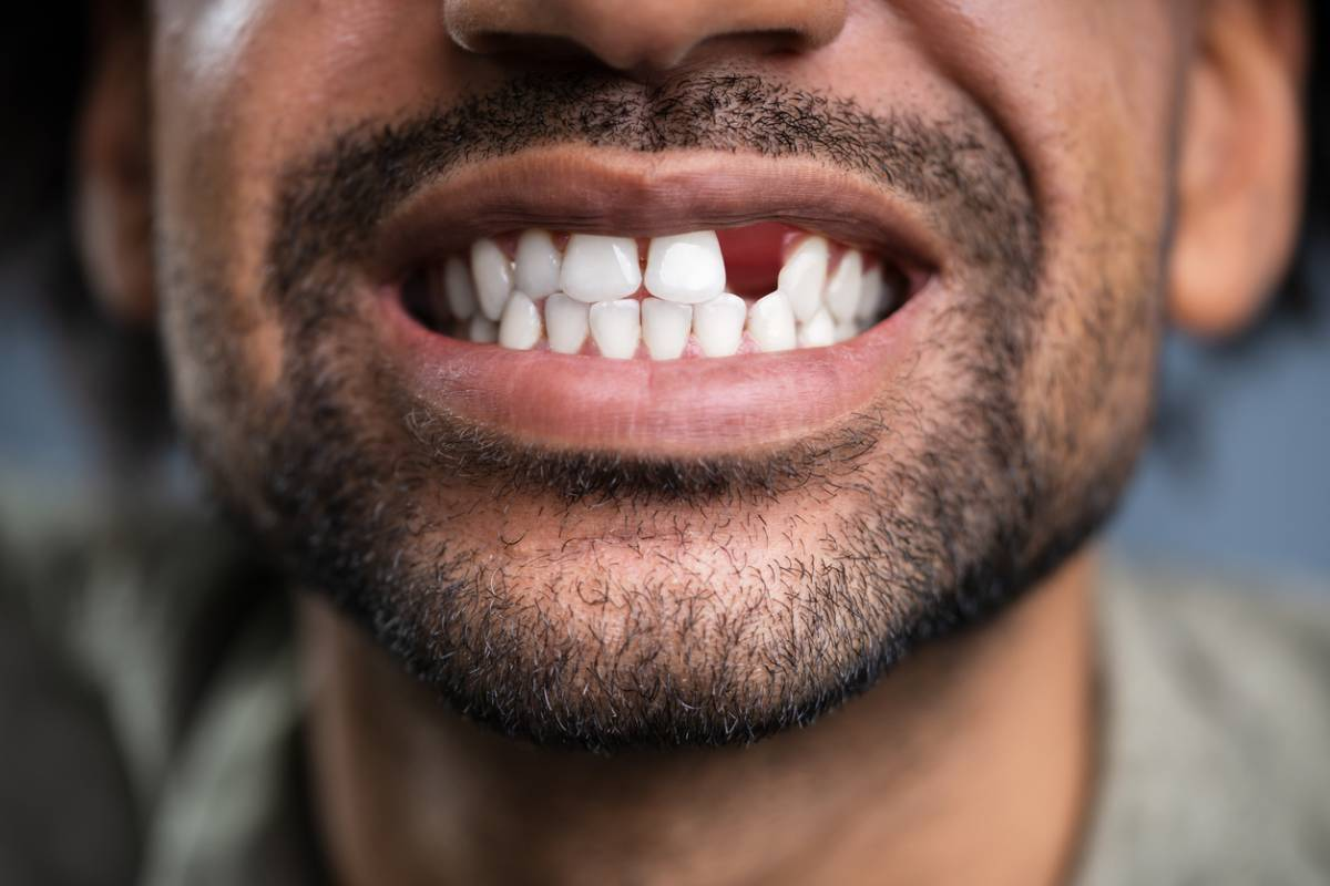 Man wanting to replace teeth after losing one.